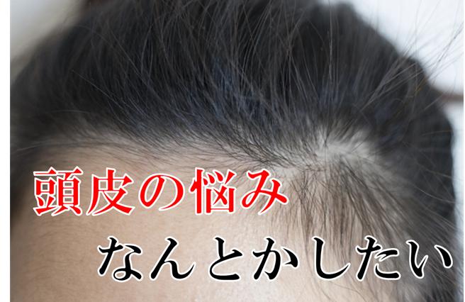頭皮の悩み 脂漏性皮膚炎