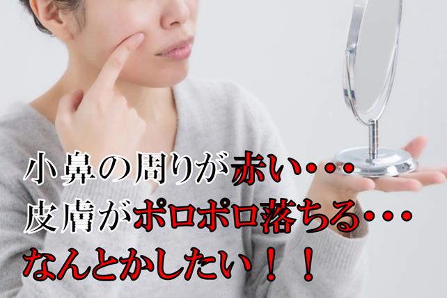 小鼻の周りの脂漏性皮膚炎
